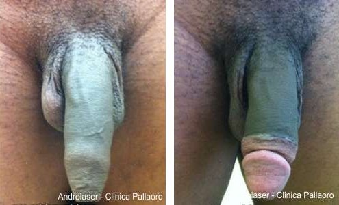 circoncisione immagine 3