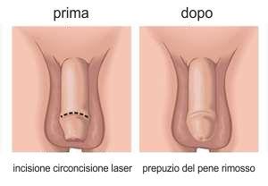 circoncisione laser intervento