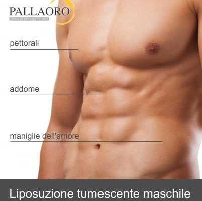 liposuzione addome maschile e modellamento fianchi